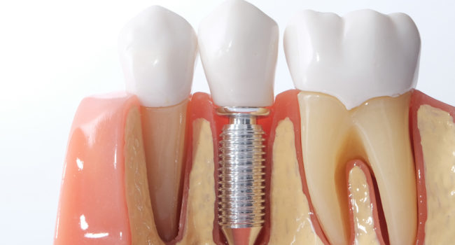 Generic Dental Implant Study Analysis Crown Bridge Demonstration Teeth Model